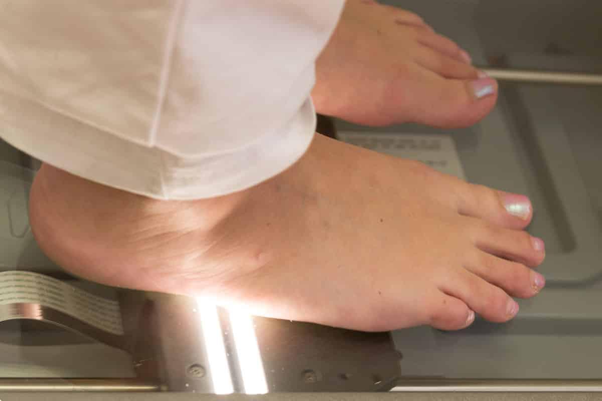 Carepoint Fußscan zur Analyse bei der Diabetesversorgung